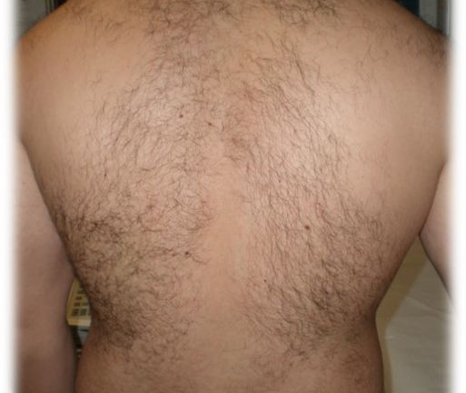 Hair removal 4 – Treatment with Intense Pulsed Light