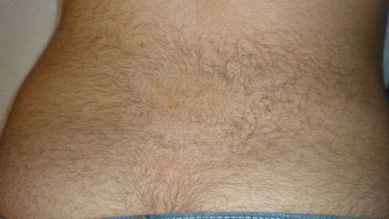 Hair removal 3 – Treatment with Intense Pulsed Light