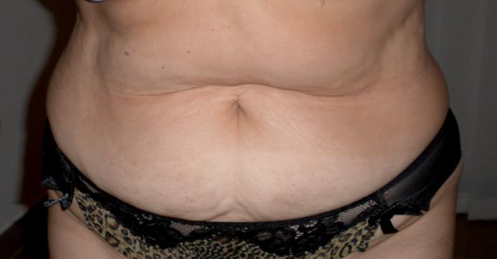 Body shaping – Trattamento con cavitazione