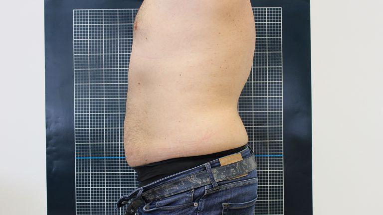 Body shaping 3 – Trattamento con cavitazione