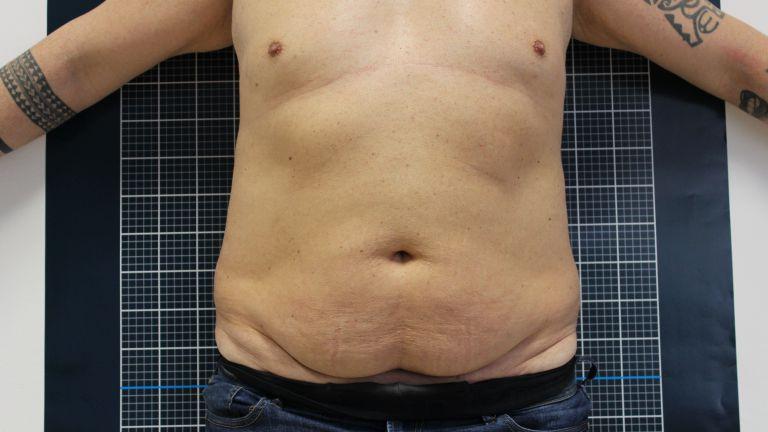 Body shaping 4 – Trattamento con cavitazione