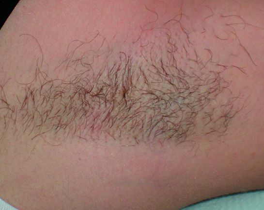 Hair removal 5 – Treatment with diode laser