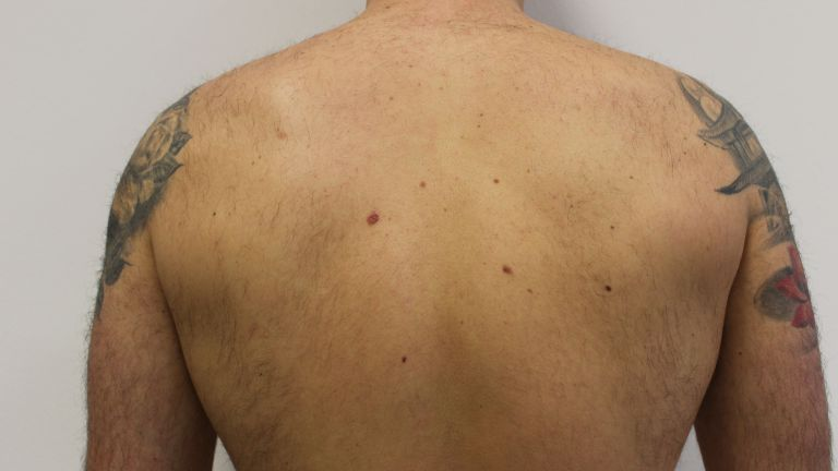 Hair removal 8 – Treatment with diode laser
