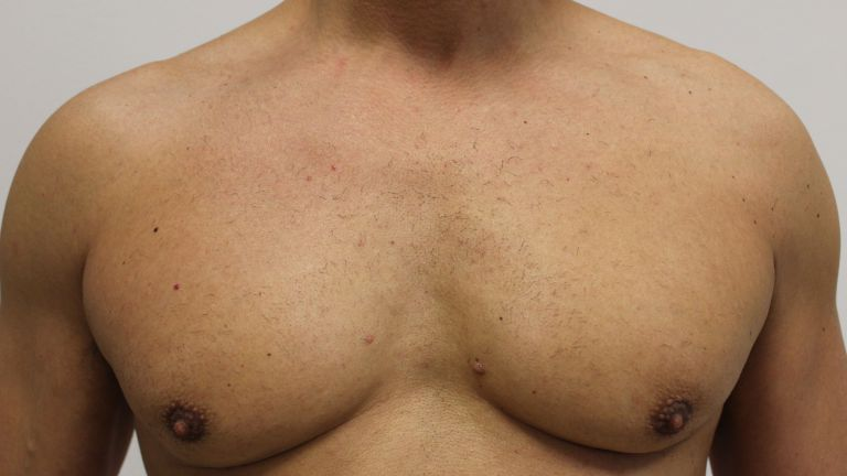 Hair removal 7 – Treatment with diode laser